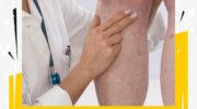 Тромбофлебит глубоких вен: причины, лечение. Нажмите