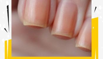 Желтизна ногтей как избавиться. Нажмите, чтобы узнать подробности